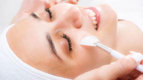 peeling-químico-facial